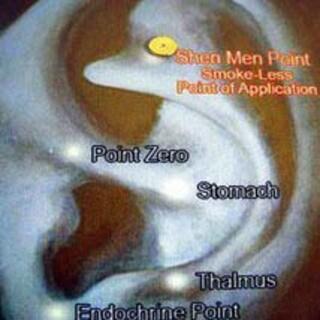 Shen Men Magnetic Acupressure 'Stop Smoking Kit'