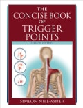 The Concise Book of Trigger Points (Paperback)
