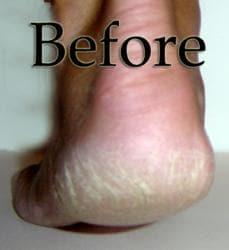 Luxuriant 2.5-ounce Cracked Heel Renewal Treatment