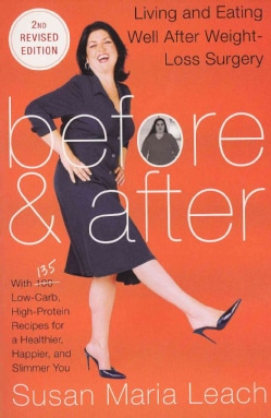 Before & After: Living and Eating Well After Weight-Loss Surgery (Paperback)