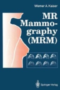 MR Mammography (MRM) (Paperback)