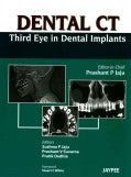 Dental CT: Third Eye in Dental Implants (Hardcover)