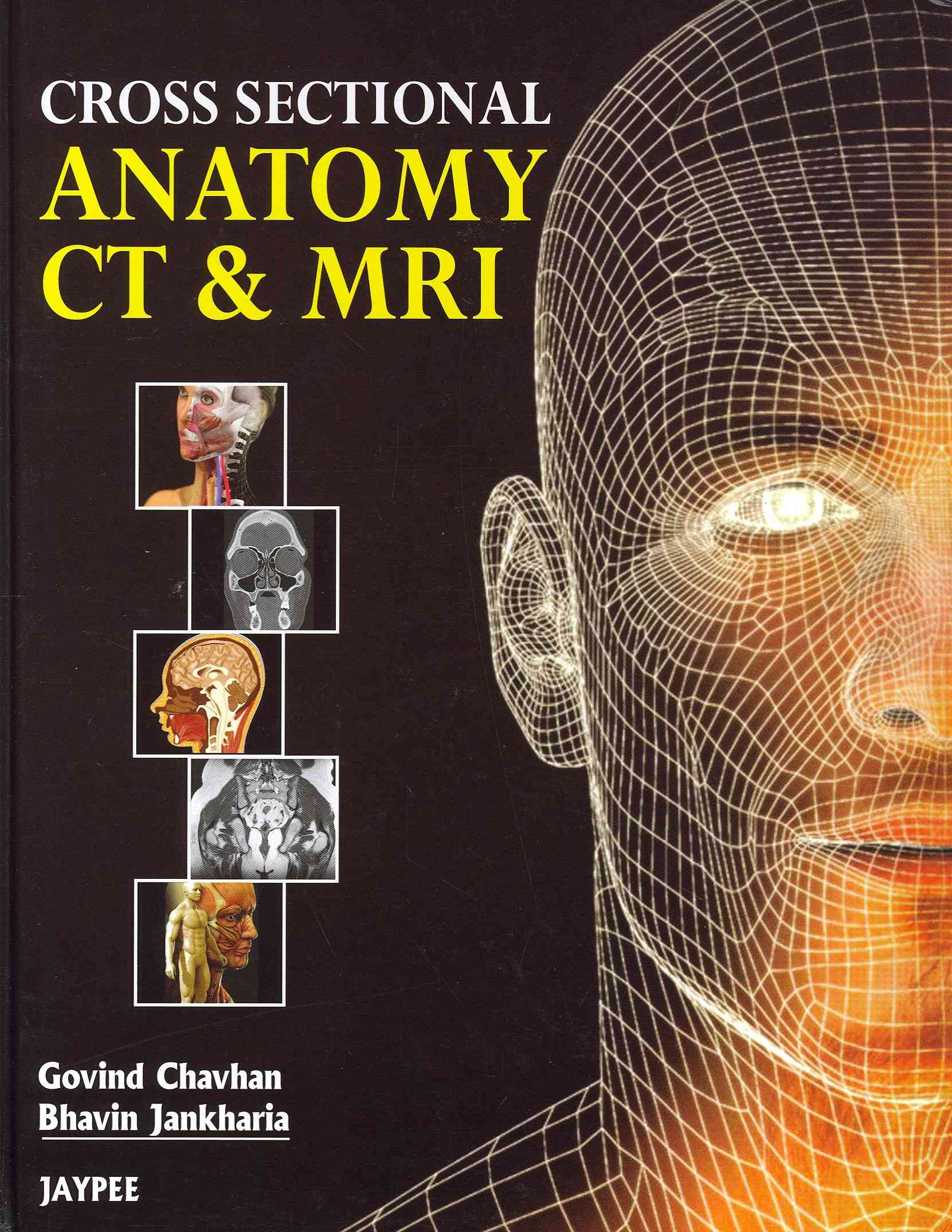 Cross Sectional Anatomy CT & MRI (Hardcover) - Thumbnail 0