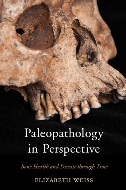 Paleopathology in Perspective: Bone Health and Disease Through Time (Paperback)