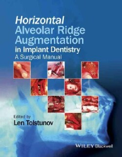 Horizontal Alveolar Ridge Augmentation in Implant Dentistry: A Surgical Manual (Hardcover)