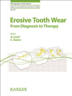 Erosive Tooth Wear: From Diagnosis to Therapy (Hardcover)