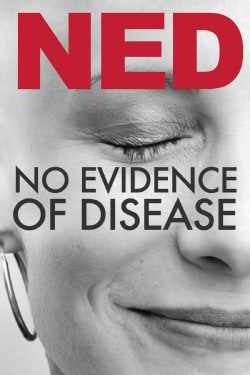 No Evidence of Disease (DVD)