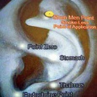 Shen Men Magnetic Acupressure Stop Smoking Kit'