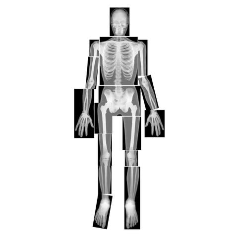 Roylco® True to Life Human X-Ray Set, Pack of 18