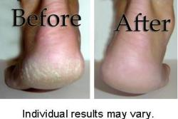 Luxuriant 2.5-ounce Cracked Heel Repair (Pack of 2)