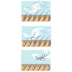 As Seen on TV Pain-free Sensitive Formula Epil Silk Hair Remover Set - Thumbnail 1