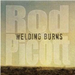 ROD PICOTT - WELDING BURNS
