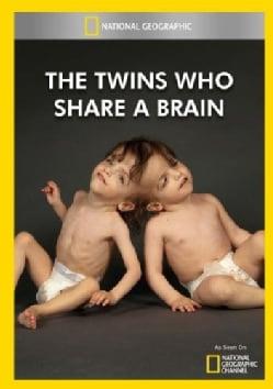 The Twins Who Share A Brain (DVD)