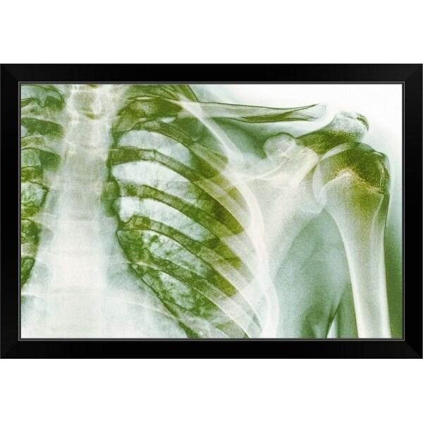 """""""Normal shoulder, X-ray"""" Black Framed Print"""