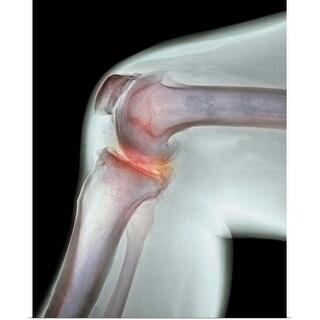 """Arthritis of the knee, X-ray"" Poster Print"